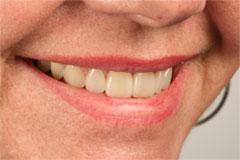 ¿Podemos evitar el sangrado de encías?